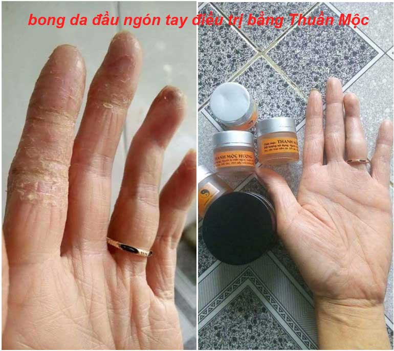 bong da đầu ngón tay điều trị bằng Thuần Mộc